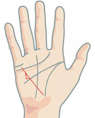 Линия на здравето - триъгълник