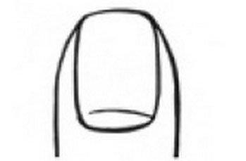 Вертикално изразени нокти