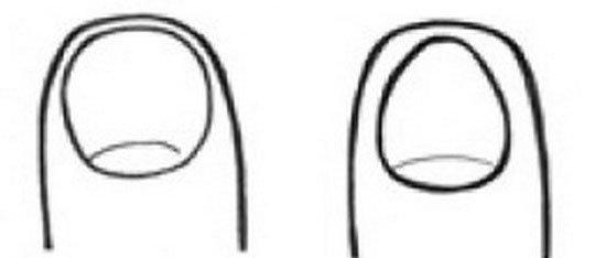 Закръглени или овални нокти