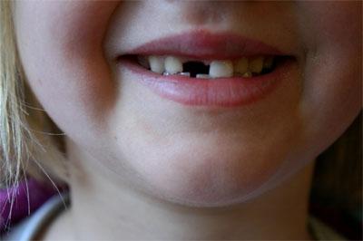 Падане на зъби